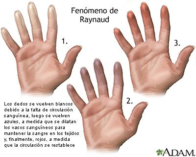El fenómeno de Raynaud se caracteriza por que los dedos de las manos se tornan de color blanco debido a la falta de flujo sanguíneo, luego azules debido al consumo de oxígeno y finalmente rojos a medida que el flujo sanguíneo retorna.