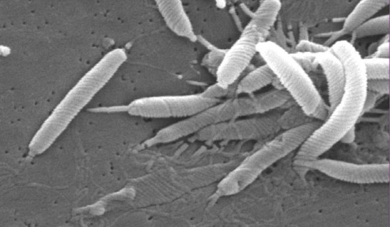 helicobacter_pylori_wikipedia